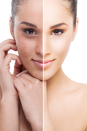 Guide To Lighten Pigmentation With The Best Skin Lightening Cream - Unveil  Beauty With Confidence